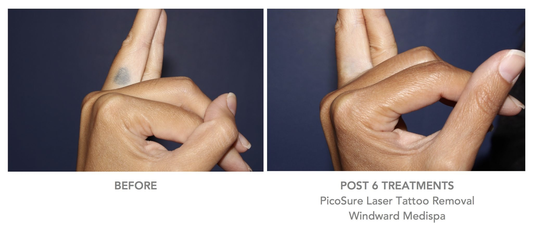 Galleries windward vein heart medispa for How much is picosure tattoo removal