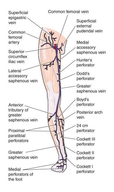 Causes of Varicose Veins | Spider Veins Symptoms | Honolulu