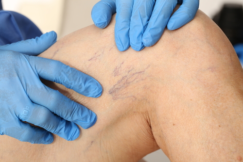 new-spider-vein-treatment