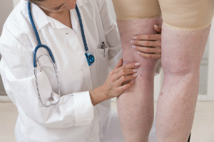 spider veins vs varicose veins